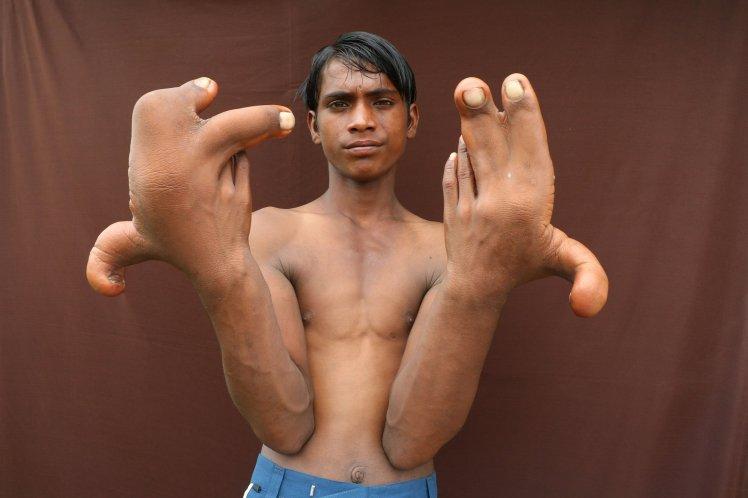 Cậu bé bị xa lánh vì mang đôi tay dị dạng của quỷ - Ảnh 2.