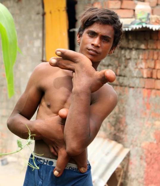 Cậu bé bị xa lánh vì mang đôi tay dị dạng của quỷ - Ảnh 3.