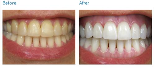 Xem chuyên gia bật mí quy trình hô biến răng vàng ố thành răng trắng - Ảnh 8.