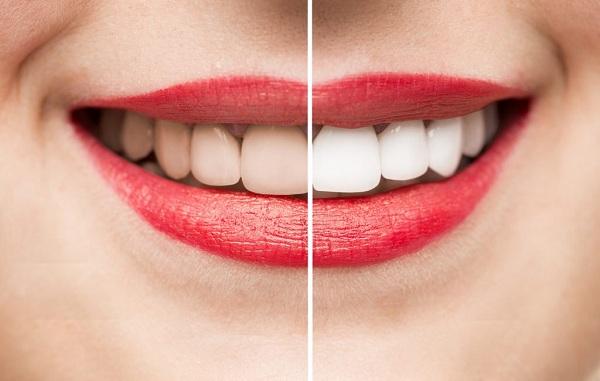 Bọc răng sứ nguy hiểm như thế nào với răng miệng và sức khỏe? 1