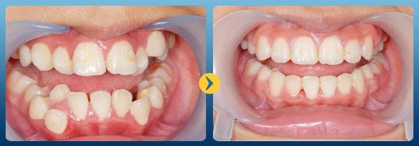 Chuyên gia cảnh báo: Đừng đợi quá muộn mới đi niềng răng - Ảnh 5.