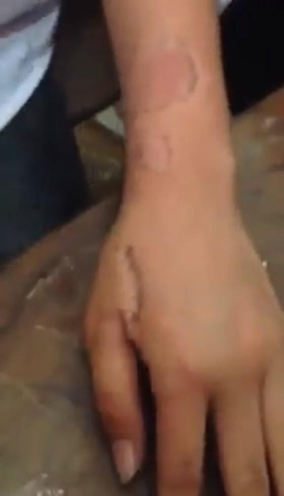 Bàn tay cô gái sau khi bị người yêu cắn.