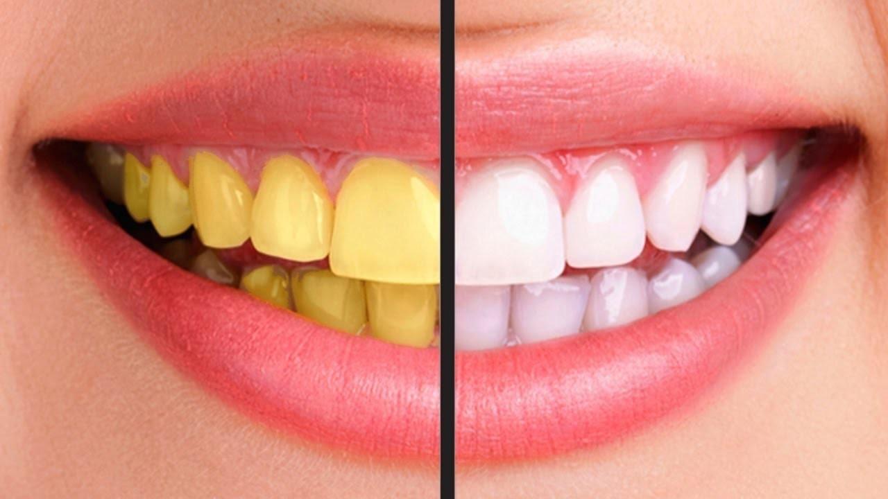 Đánh răng mỗi ngày nhưng răng ngày càng vàng ố xỉn màu có thể do 5 sai lầm ai cũng dễ mắc phải sau - Ảnh 1.