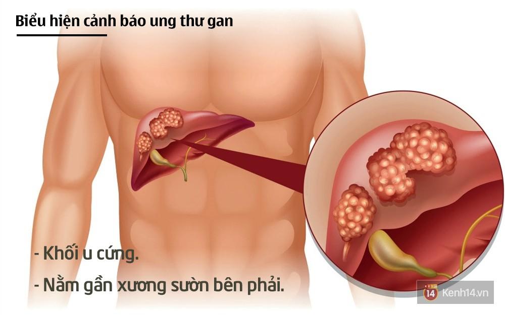 Tuyệt đối không chủ quan khi thấy những biểu hiện cảnh báo ung thư gan sau - Ảnh 2.