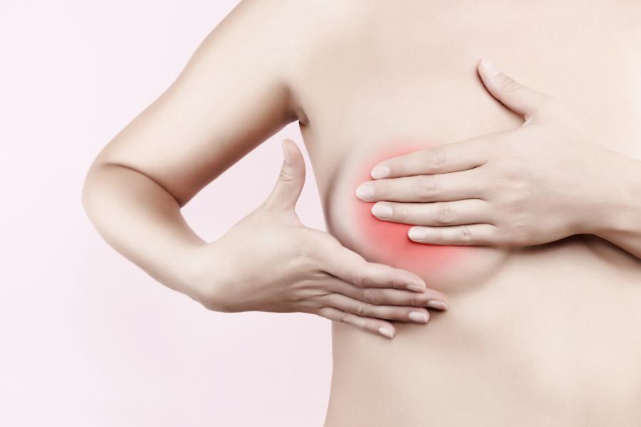 Những loại bệnh tuyến vú lành tính mà nữ giới rất hay gặp phải, nên tìm hiểu ngay để chủ động chữa bệnh - Ảnh 4.