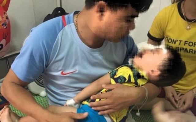 Bé trai 2 tuổi bị chó becgie nhà nuôi cắn đa chấn thương ở mặt - Ảnh 1.
