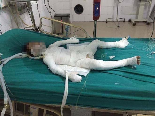 Cháu bé 6 tuổi bị bố dượng nhốt trong nhà, tẩm xăng đốt đang trong tình trạng nguy kịch - Ảnh 1.