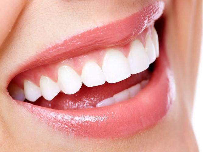 Sức khỏe răng miệng ảnh hưởng như thế nào đến sức khỏe toàn diện? - Ảnh 6.