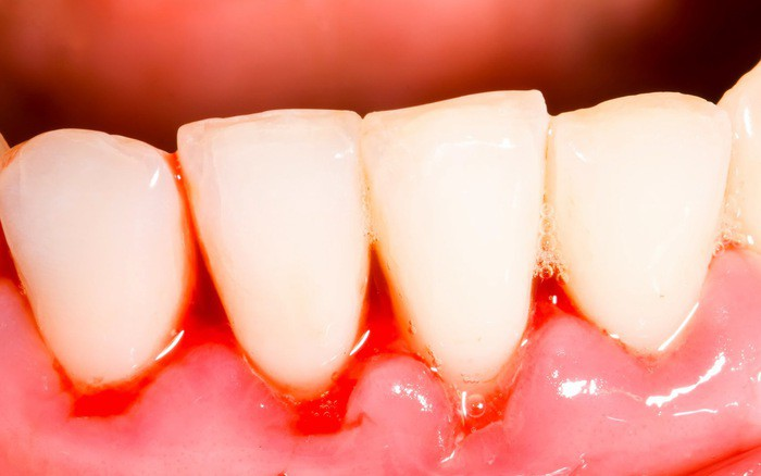 Cẩn thận mắc bệnh viêm nướu răng nếu gặp phải 5 dấu hiệu sau - Ảnh 1.