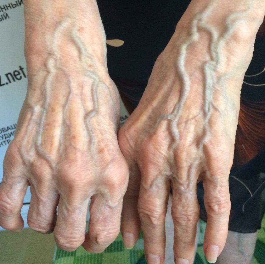 Một số người có làn da nổi gân guốc nhiều hơn hẳn phần còn lại và đây là lý do - Ảnh 6.