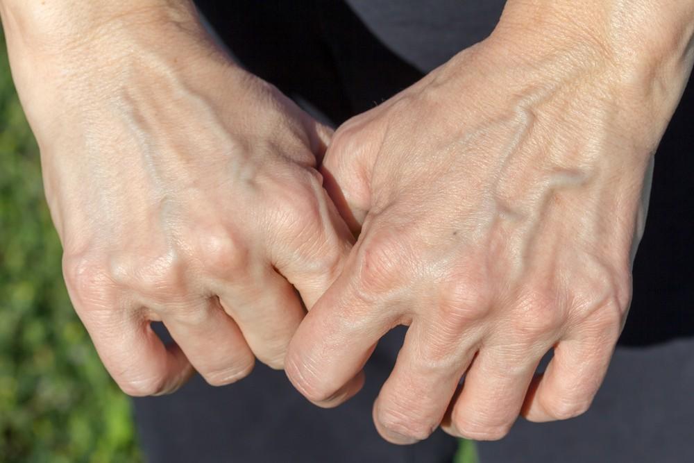 Một số người có làn da nổi gân guốc nhiều hơn hẳn phần còn lại và đây là lý do - Ảnh 2.