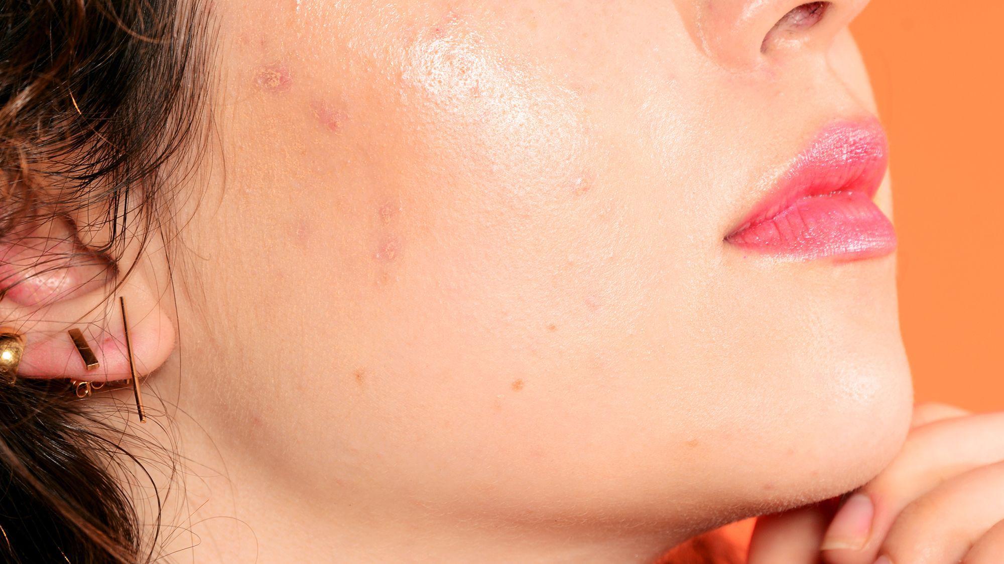 Image result for rửa mặt và hàng rào bảo vệ da