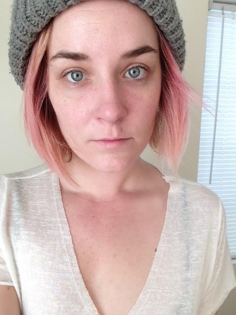 Từ làn da mẩn đỏ sần sùi, sau 1 tháng dưỡng da bài bản cô nàng này đã nhận được kết quả đáng kinh ngạc - Ảnh 5.