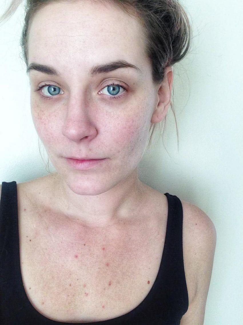 Từ làn da mẩn đỏ sần sùi, sau 1 tháng dưỡng da bài bản cô nàng này đã nhận được kết quả đáng kinh ngạc - Ảnh 7.