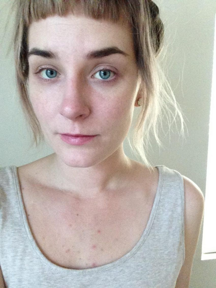 Từ làn da mẩn đỏ sần sùi, sau 1 tháng dưỡng da bài bản cô nàng này đã nhận được kết quả đáng kinh ngạc - Ảnh 1.