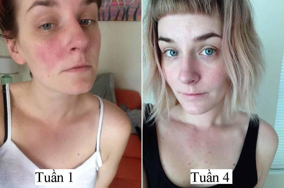 Từ làn da mẩn đỏ sần sùi, sau 1 tháng dưỡng da bài bản cô nàng này đã nhận được kết quả đáng kinh ngạc - Ảnh 9.