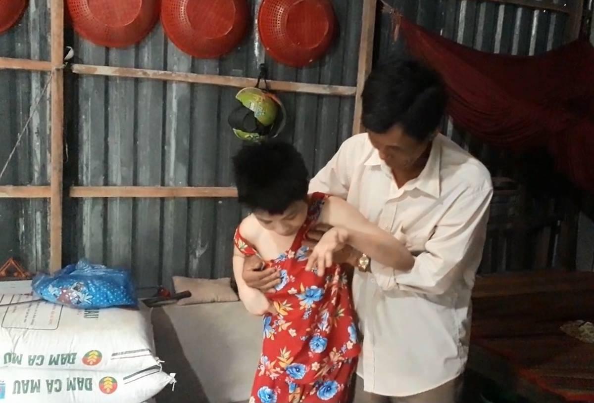 Bạc Liêu: Người cha khóc nghẹn kể chuyện con gái mắc bệnh bại não nghi