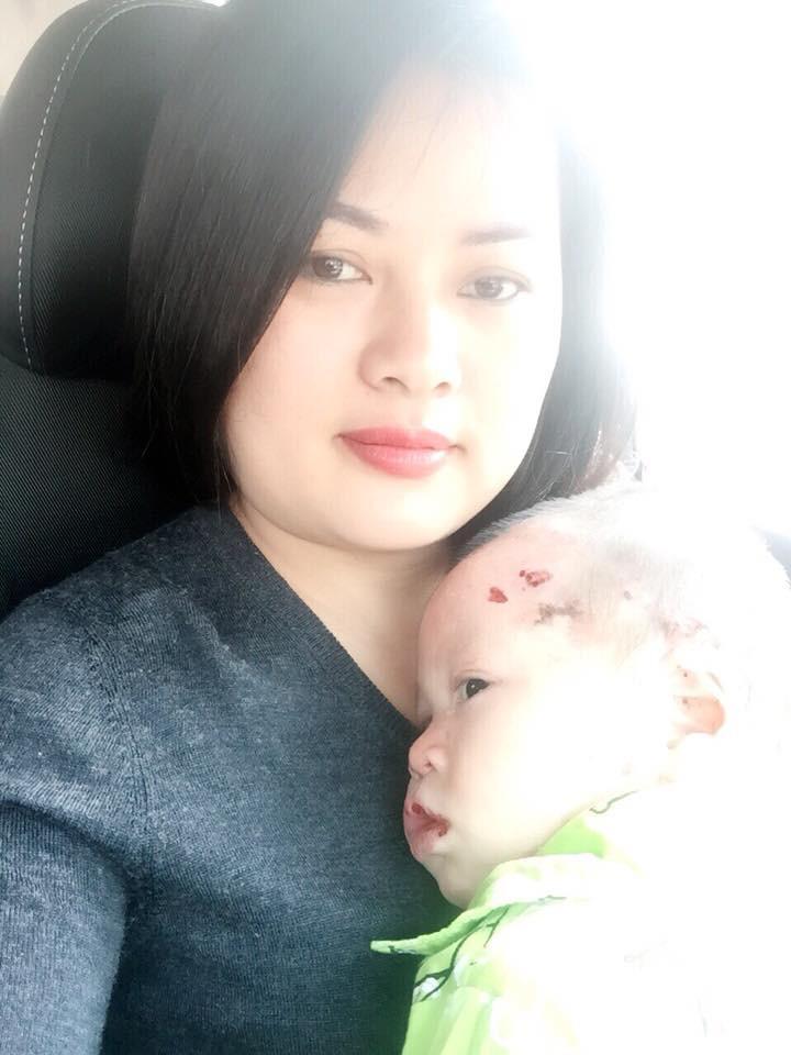 Người mẹ đơn thân 8 năm ròng đi khắp mọi miền đất nước để giành giật sự sống cho trẻ mắc bệnh EB từ tay thần chết - Ảnh 3.