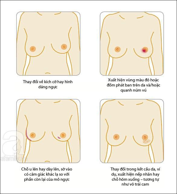 Dù ngực không có khối u nhưng nếu thấy có biểu hiện như trong bức tranh này thì bạn nên đi khám ung thư vú ngay kẻo muộn - Ảnh 4.