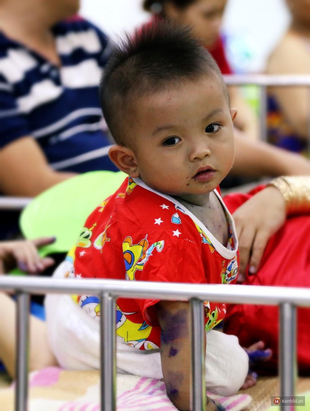 Dịch tay chân miệng bùng phát khó lường ở Sài Gòn: Bệnh viện quá tải, bố mẹ trắng đêm chăm con giữa mùa dịch - Ảnh 8.
