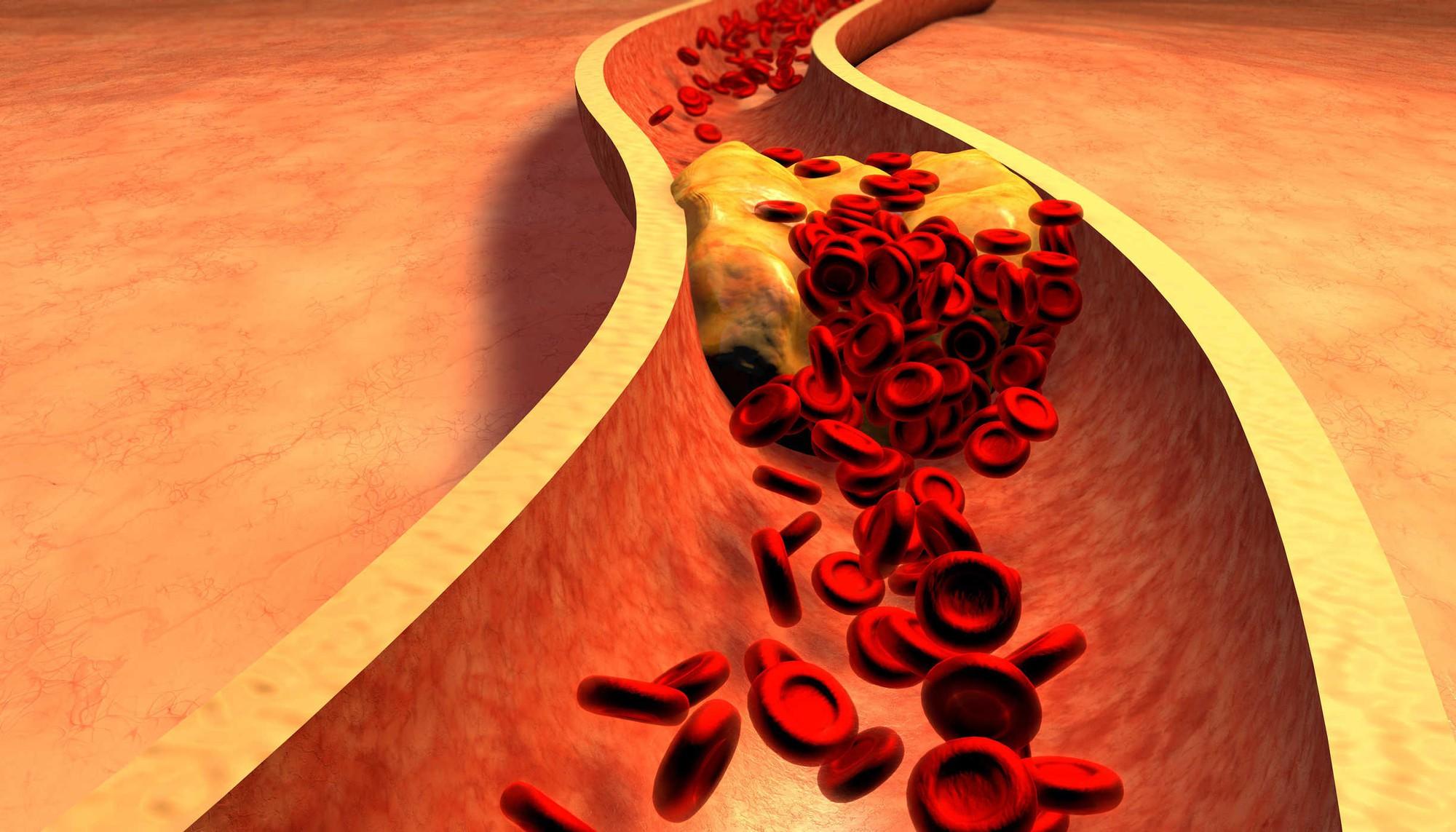 Gan của bạn có thể đang chất chứa đầy mỡ nếu gặp phải các triệu chứng sau - Ảnh 5.