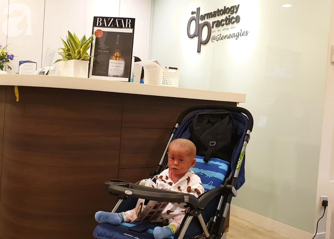 Hình ảnh mới nhất của bé Bích bị bỏ rơi, người đầy vẩy ngứa như da trăn sau đợt khám bệnh đầu tiên tại Singapore - Ảnh 1.