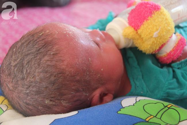 Hình ảnh mới nhất của bé Bích bị bỏ rơi, người đầy vẩy ngứa như da trăn sau đợt khám bệnh đầu tiên tại Singapore - Ảnh 11.