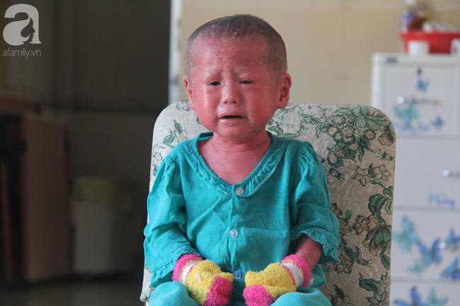 Hình ảnh mới nhất của bé Bích bị bỏ rơi, người đầy vẩy ngứa như da trăn sau đợt khám bệnh đầu tiên tại Singapore - Ảnh 12.