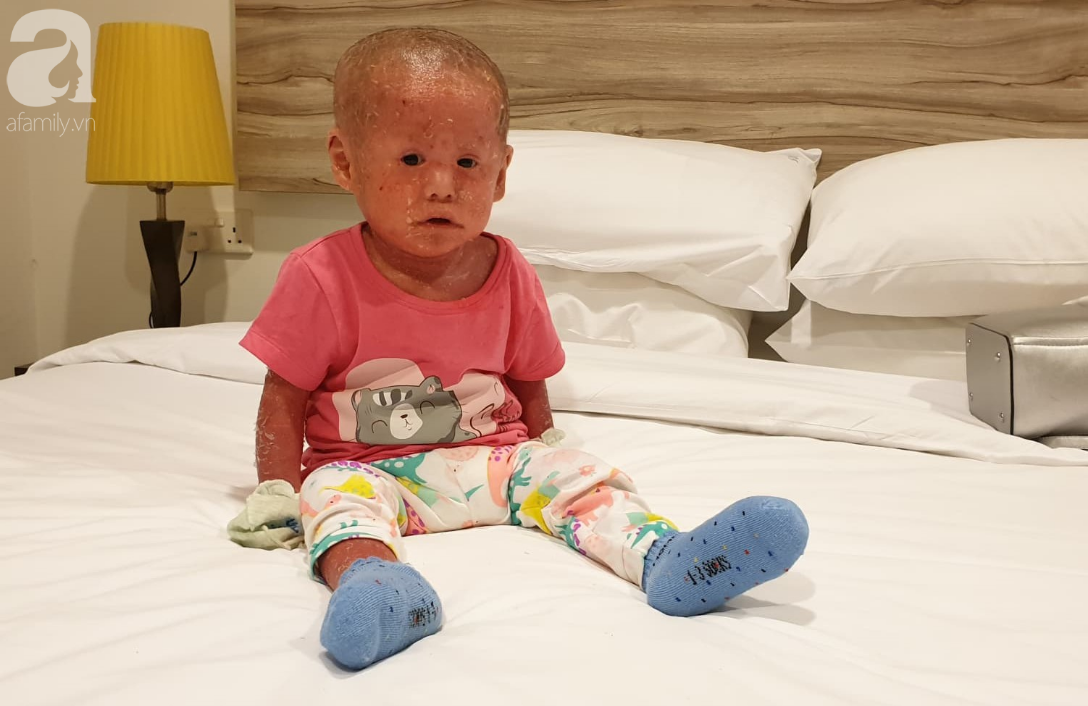 Hình ảnh mới nhất của bé Bích bị bỏ rơi, người đầy vẩy ngứa như da trăn sau đợt khám bệnh đầu tiên tại Singapore - Ảnh 4.