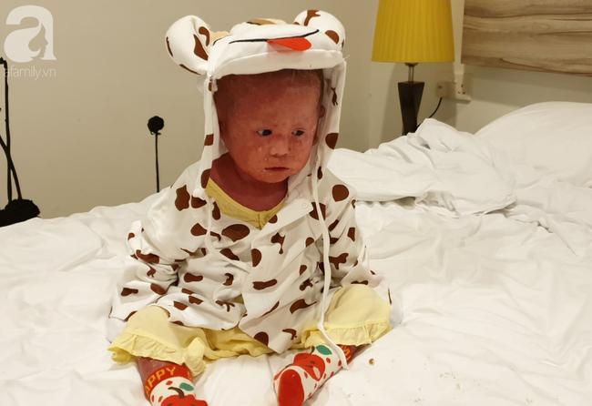 Hình ảnh mới nhất của bé Bích bị bỏ rơi, người đầy vẩy ngứa như da trăn sau đợt khám bệnh đầu tiên tại Singapore - Ảnh 10.