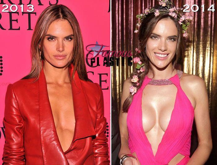 Khi sao Hollywood nâng ngực: Người sexy thêm bội phần, kẻ thì làm vòng 1 trở nên méo mó thảm họa - Ảnh 4.
