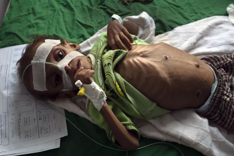 Bé gái trong bức ảnh gây chấn động thế giới về nạn đói đã qua đời, trở thành biểu tượng đau đớn của cuộc khủng hoảng tại Yemen - Ảnh 3.