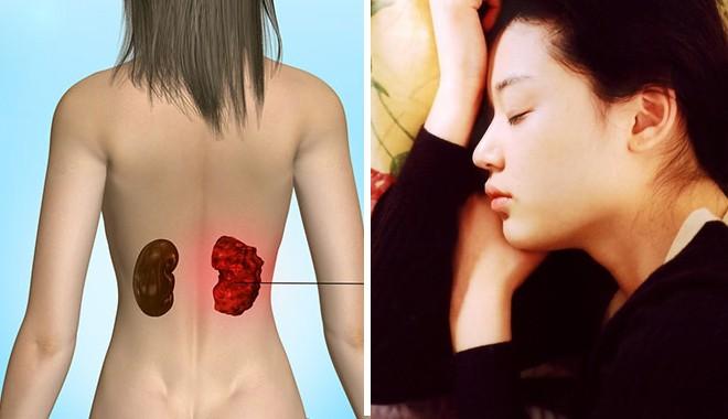 Ung thư thận: không can thiệp sớm thì chỉ sống được khoảng 1 năm và đây là 3 dấu hiệu nhận biết điển hình - Ảnh 3.