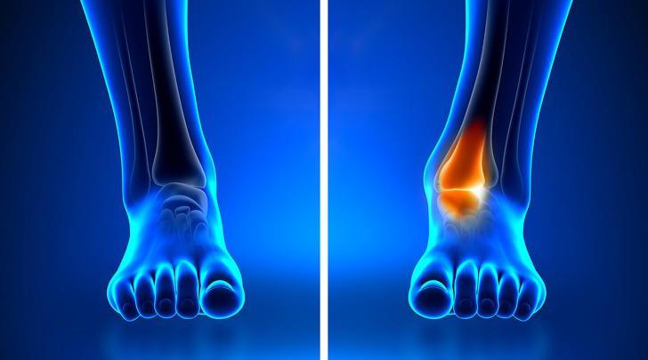 Những dấu hiệu khác lạ trên cơ thể tưởng rất bình thường nhưng lại tiềm ẩn hàng loạt nguy cơ gây hại sức khỏe - Ảnh 4.