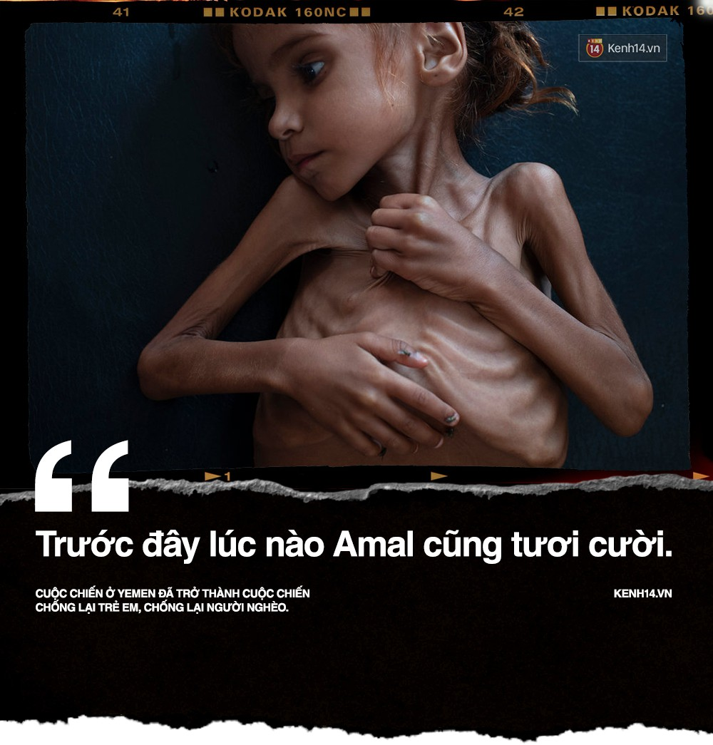 Amal Hussain: Biểu tượng nạn đói Yemen và sứ mệnh hy sinh cho cả dân tộc trên vai những đứa trẻ - Ảnh 1.