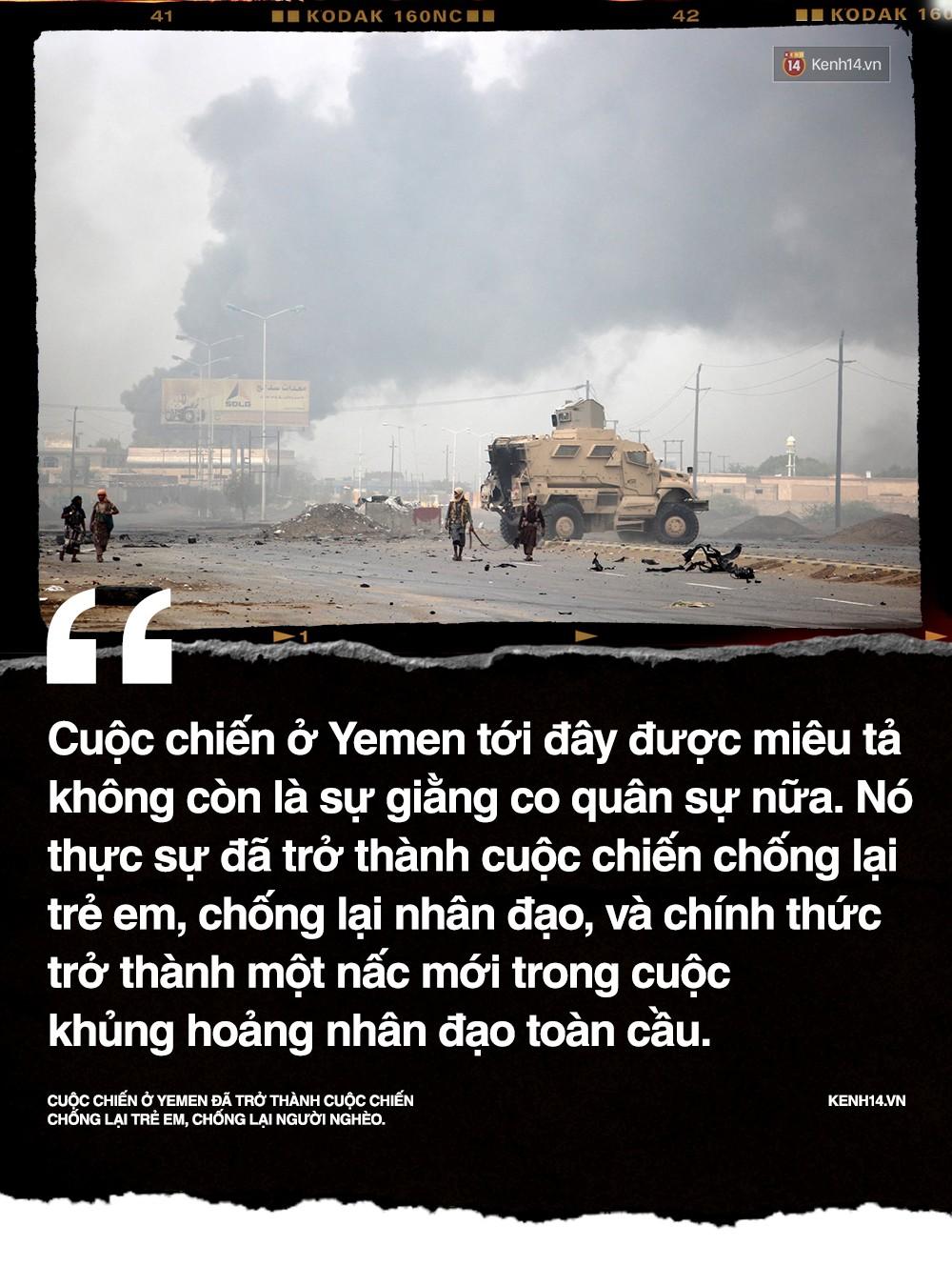 Amal Hussain: Biểu tượng nạn đói Yemen và sứ mệnh hy sinh cho cả dân tộc trên vai những đứa trẻ - Ảnh 3.