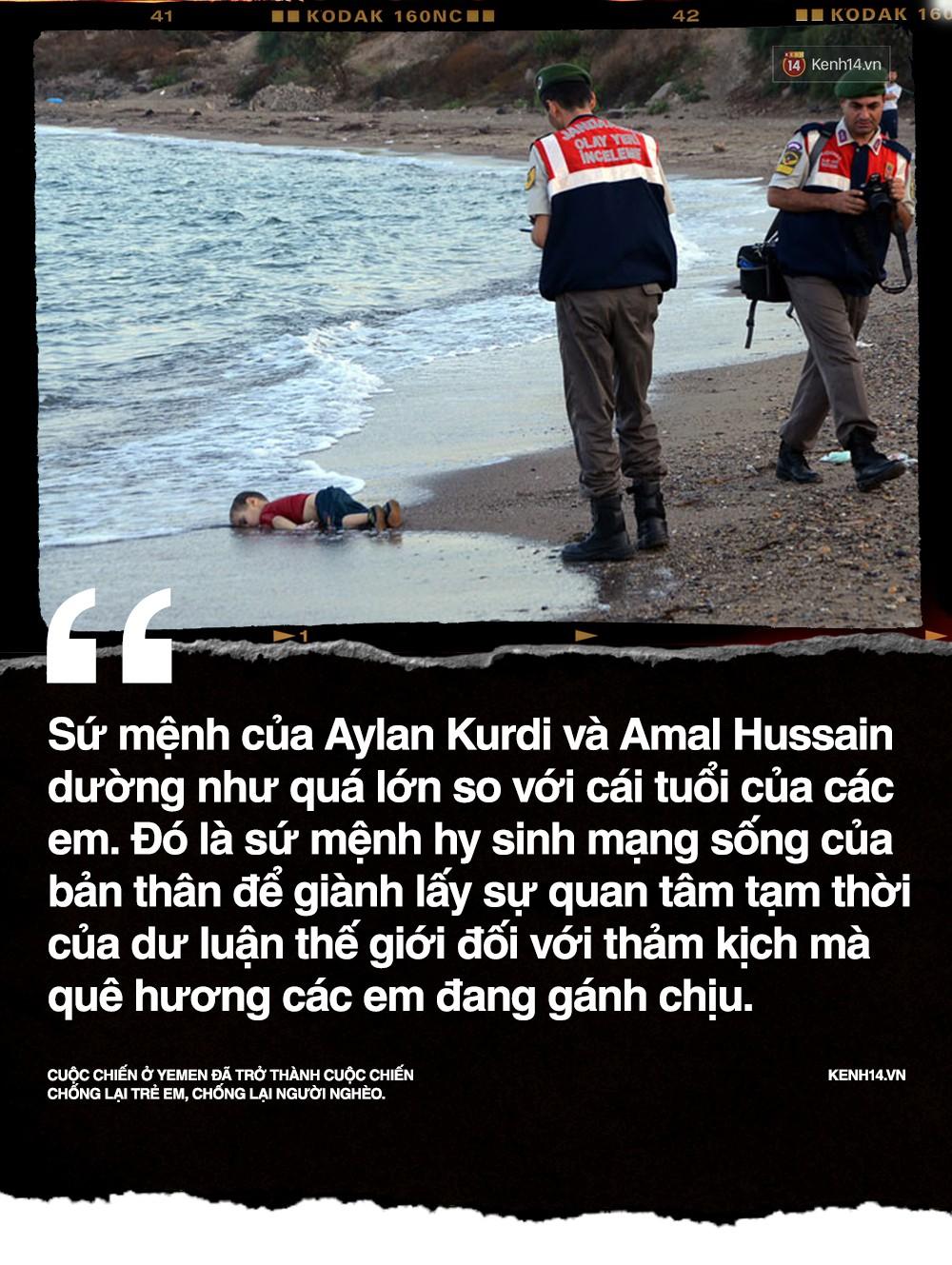 Amal Hussain: Biểu tượng nạn đói Yemen và sứ mệnh hy sinh cho cả dân tộc trên vai những đứa trẻ - Ảnh 4.