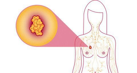 4 hành động hàng ngày dưới đây giúp giảm nguy cơ ung thư vú - Ảnh 1.