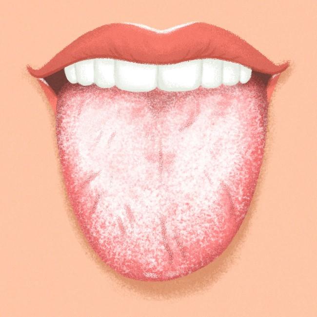 Kiểm tra ngay lưỡi của bạn để biết rõ hơn về tình trạng sức khỏe hiện tại - Ảnh 3.