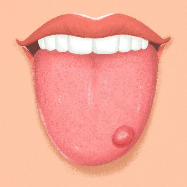 Kiểm tra ngay lưỡi của bạn để biết rõ hơn về tình trạng sức khỏe hiện tại - Ảnh 6.