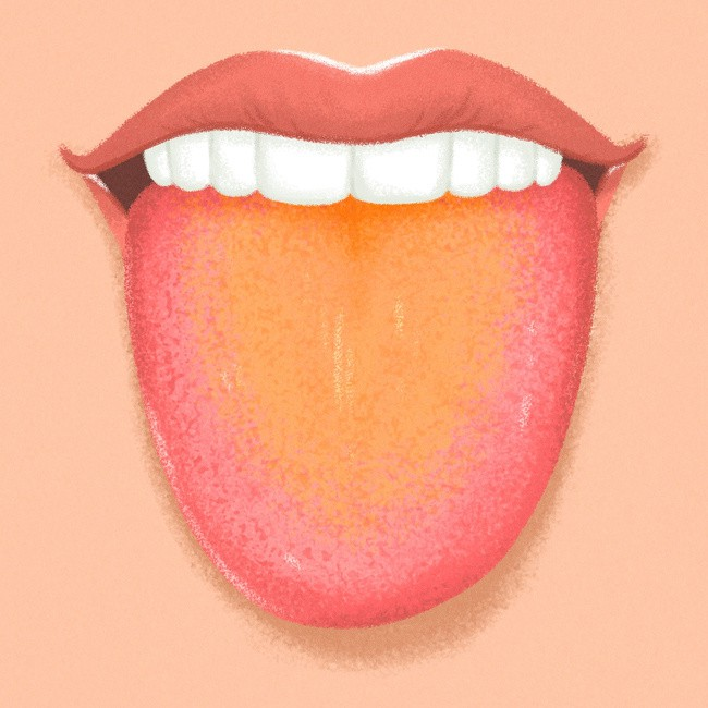 Kiểm tra ngay lưỡi của bạn để biết rõ hơn về tình trạng sức khỏe hiện tại - Ảnh 7.
