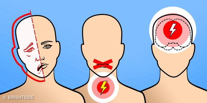 5 triệu chứng cảnh báo sớm cơn đột quỵ mà bạn chớ nên xem thường - Ảnh 1.