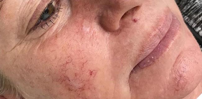 """Tình trạng da nổi """"mạng nhện"""" sẽ không còn tồi tệ nếu như bạn nghe theo những lời khuyên sau của bác sĩ da liễu - Ảnh 1."""