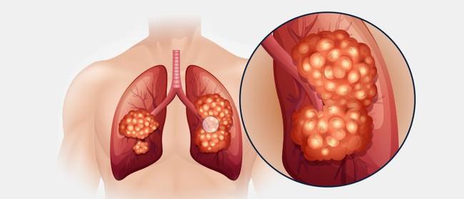 Từ một cái hắt hơi mạnh co thắt cơ lưng, cô gái 19 tuổi tràn trề nhựa sống bỗng phải nhận án ung thư phổi - Ảnh 4.