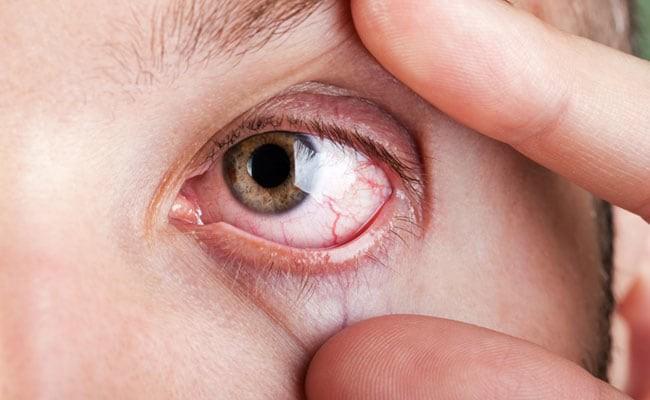 Đừng xem thường chứng khô mắt vì biến chứng rất nghiêm trọng và đây là cách  để nhận biết