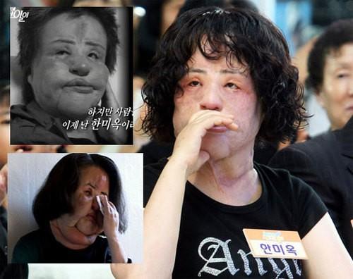 """""""Thảm hoạ dao kéo"""" Han Mi Ok qua đời ở tuổi 57: Thời trẻ điên cuồng thẩm mỹ, mua silicon, dầu ăn ở chợ đen về tự tiêm"""