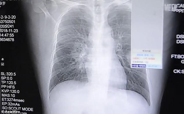 Ngày nào cũng ngửi đôi tất đã đi, người đàn ông phải nhập viện vì nhiễm trùng phổi nặng và khuyến cáo của bác sĩ - Ảnh 2.