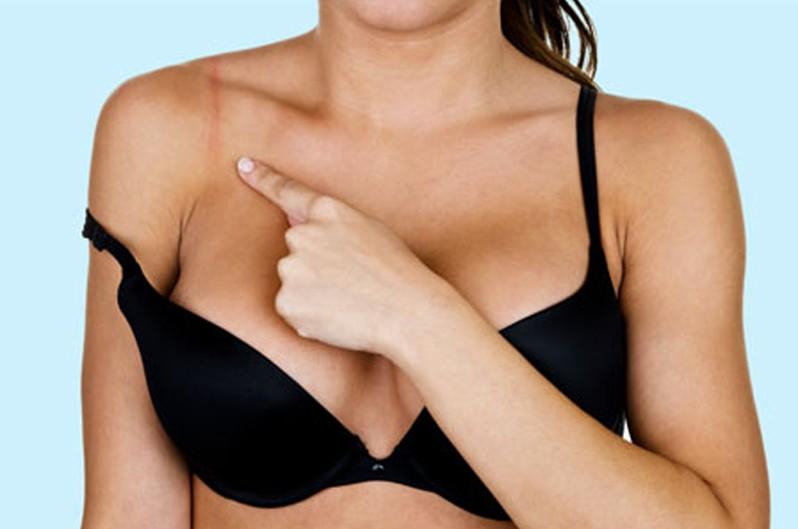 Đây là những triệu chứng cảnh báo bạn đang mặc áo ngực sai kích cỡ - Ảnh 3.