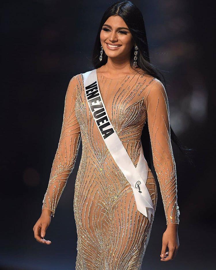 Được khen đẹp như Kim Kardashian, Á hậu Miss Universe 2018 bị khui lại ảnh quá khứ khác một trời một vực - Ảnh 1.