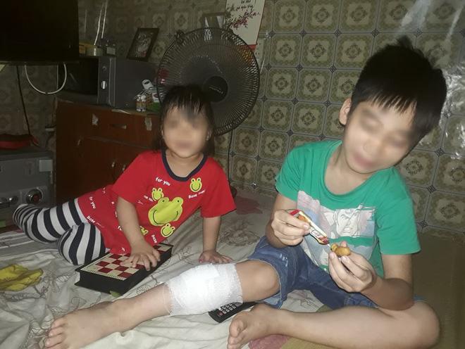 Đàn chó tấn công 2 học sinh tiểu học ở Hà Nội, một bé nhập viện vì bị cắn nhiều phát vào chân - Ảnh 2.